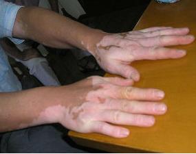 如何预防肢端型白癜风复发